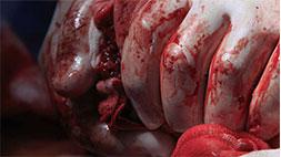 bleeding control training